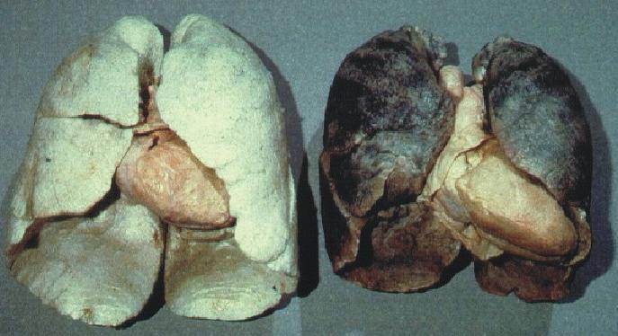Rauchen aufgehort lungenkrebs